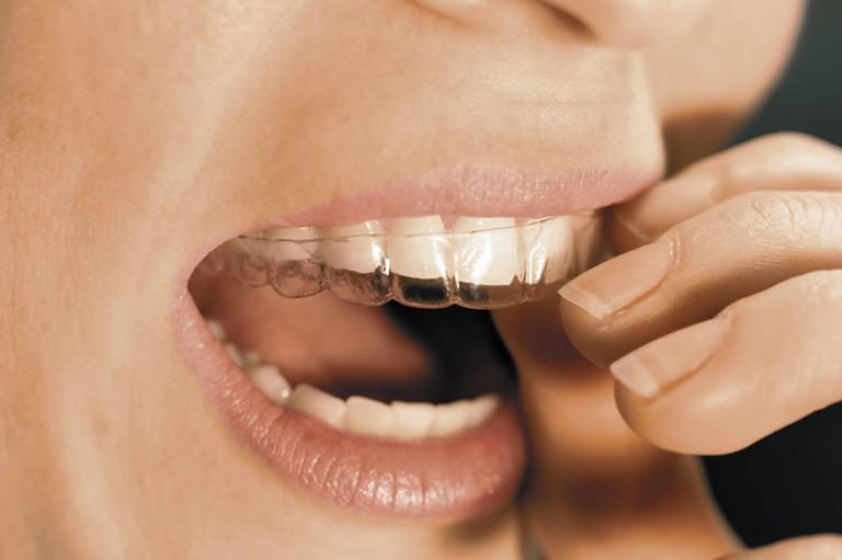 OrthoFolio - Zahnstellungskorrekturen mit unsichtbaren Schienen