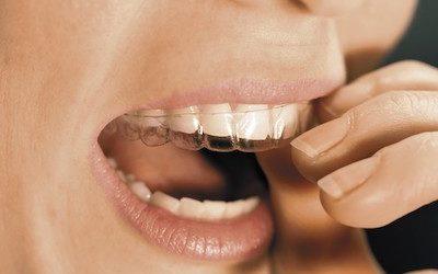 Zahnstellungskorrektur mit unsichtbaren Schienen